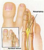 Mortons Neuroma Removal Surgery