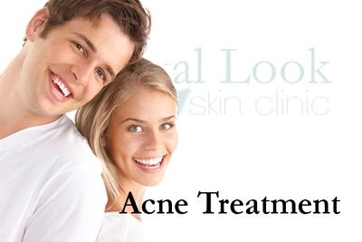 Anti-wrinkle/Filler/Facelift/Thread lift/Nose filler/Lip